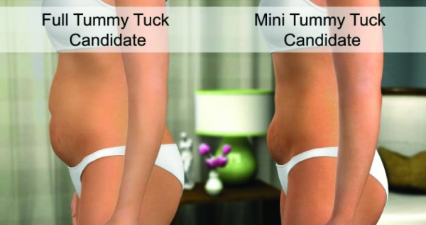 Is a Tummy Tuck for Me?